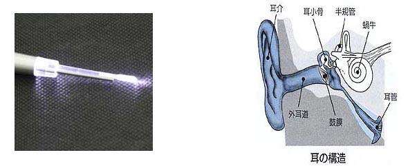 トルぴたでライトが付いた場合、耳の構造
